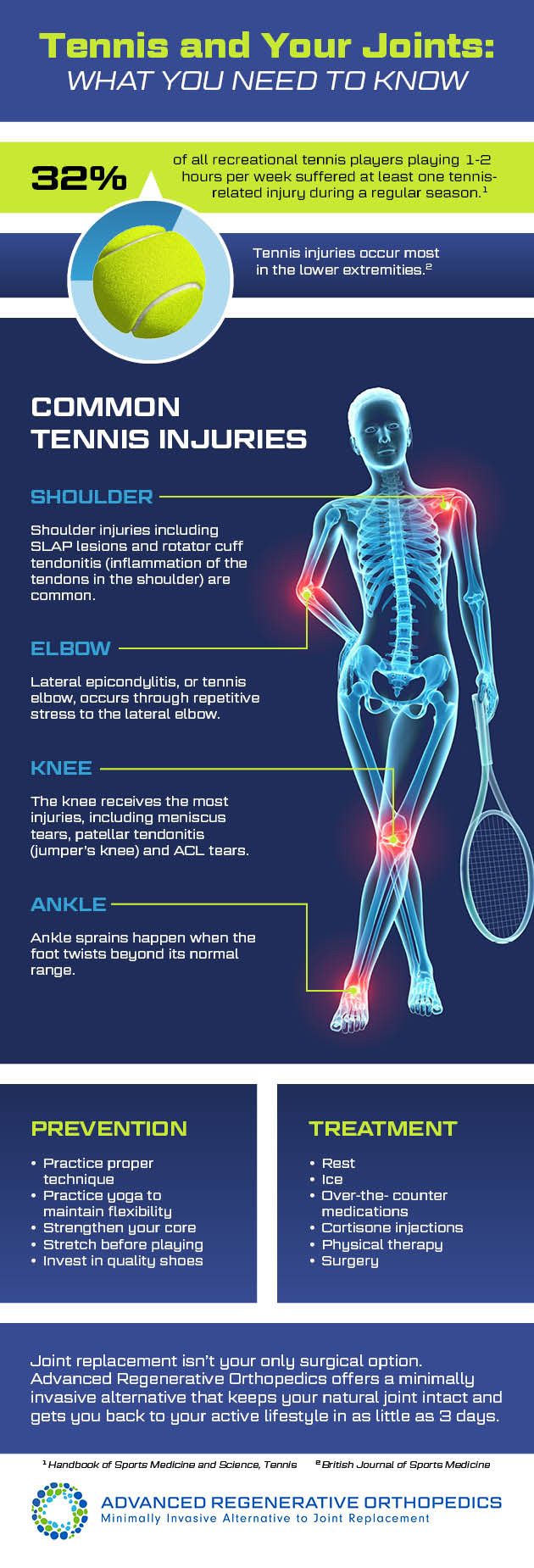 Tennis and Your Joints infographic